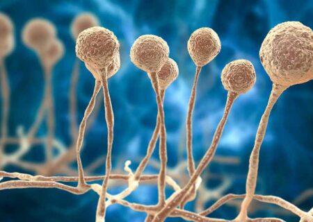 چرا مبتلایان به کووید۱۹ مستعد قارچ سیاه هستند؟